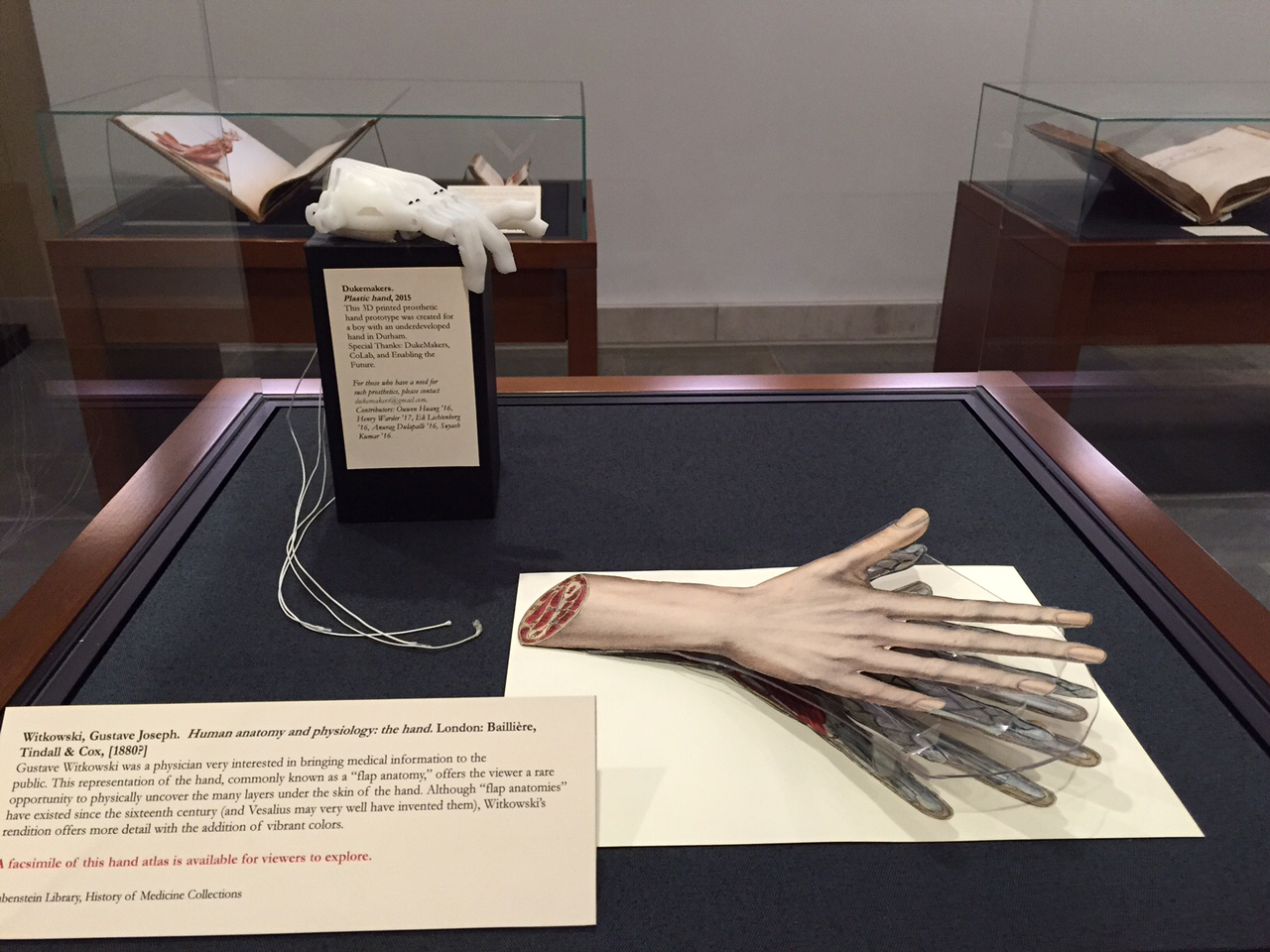 Display case showing 3-D printed prosthetic hand made by DukeMakers.