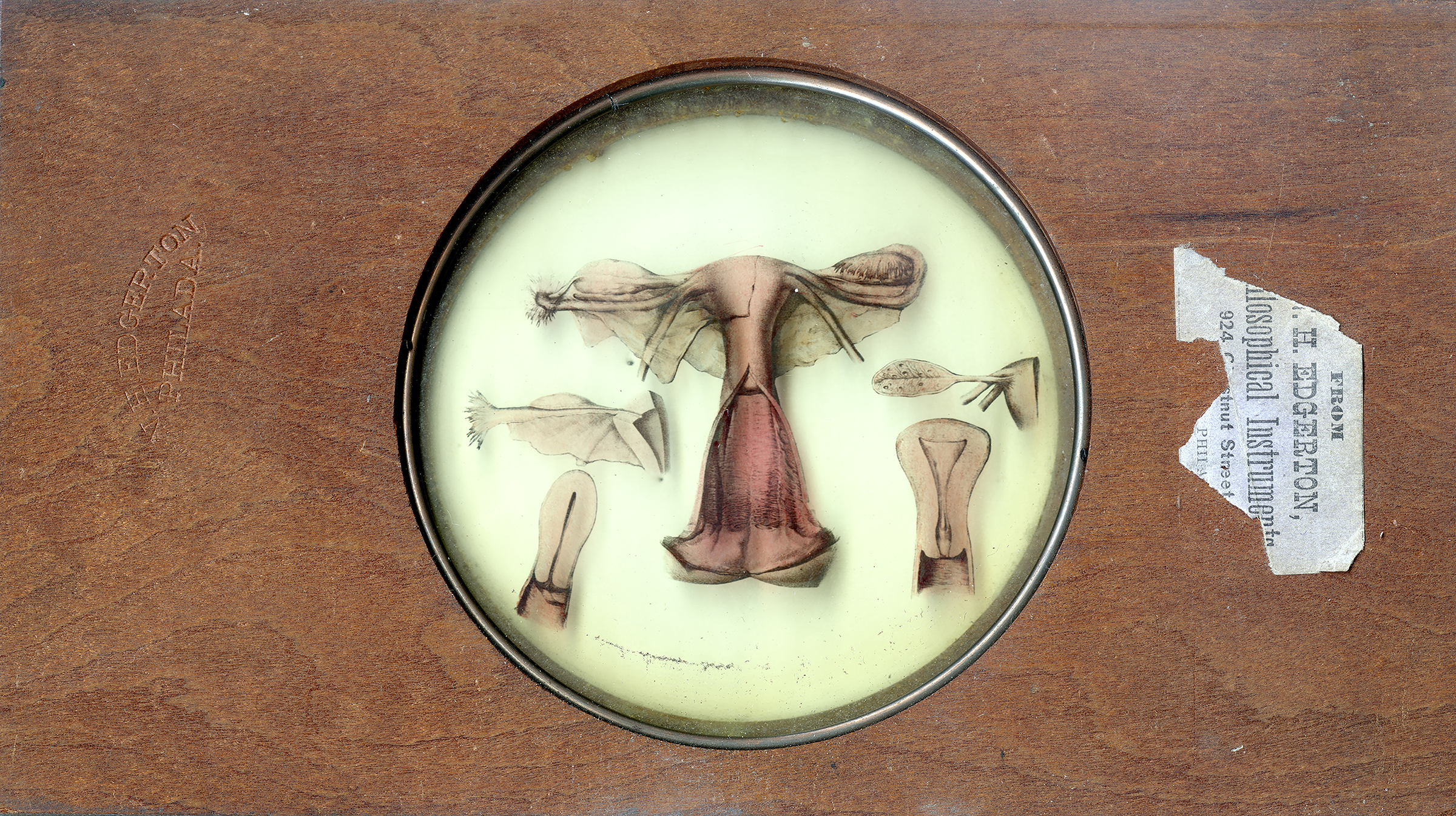 Glass lantern slide for teaching obstetrics.