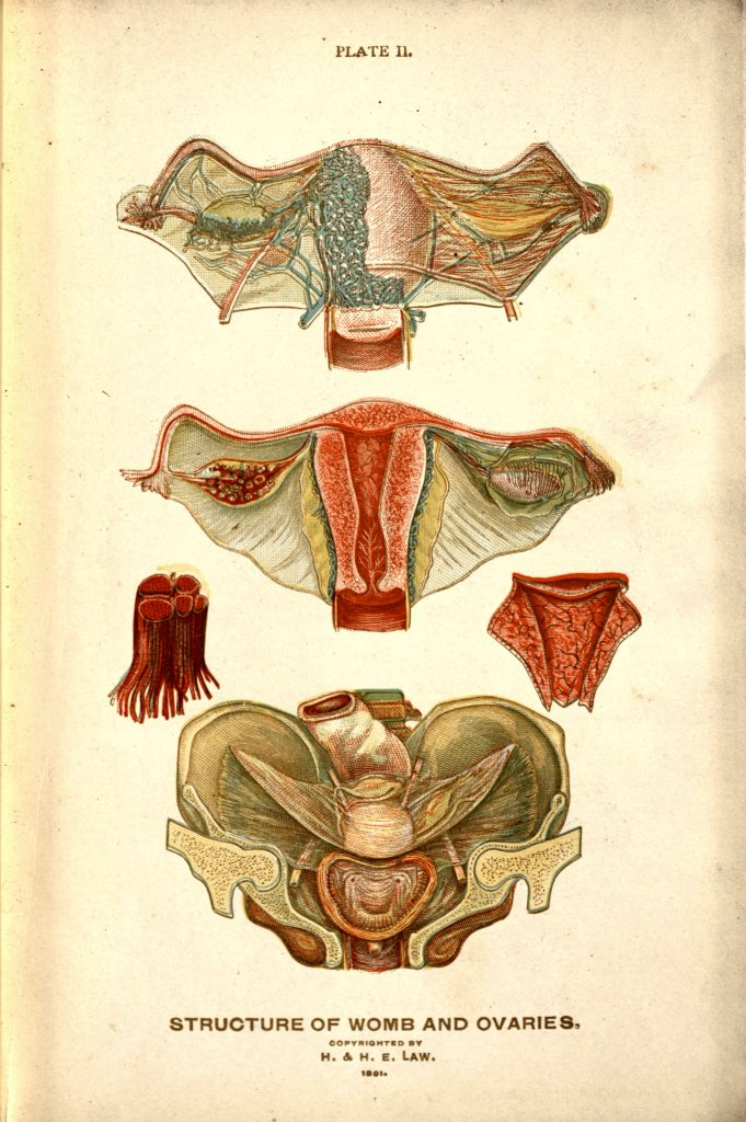 Color illustration of the anatomy of the uterus and ovaries. From The Viavi Gynecological Plates: Designed to Educate Mothers and Daughters Concerning Diseases of the Uterine Organs by Hartland Law. The Viavi Press, 1891.